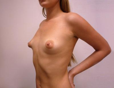 Как выглядит тубулярная грудь