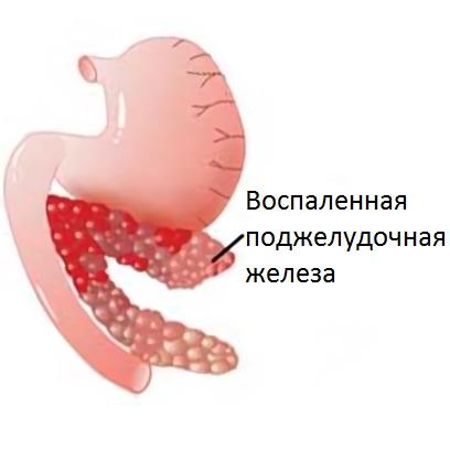 При панкреатите наблюдаются боли в груди
