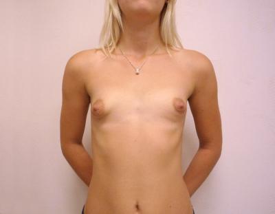 Вид тубулярной груди
