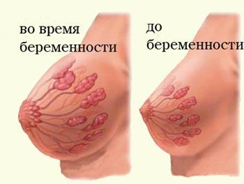 опыт увеличения груди