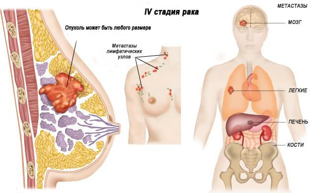 4 стадия рака сопровождается множественными метастазами