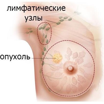При подозрении на рак - срочно обратиться к врачу