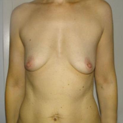 При инволюции происходит изменение формы груди