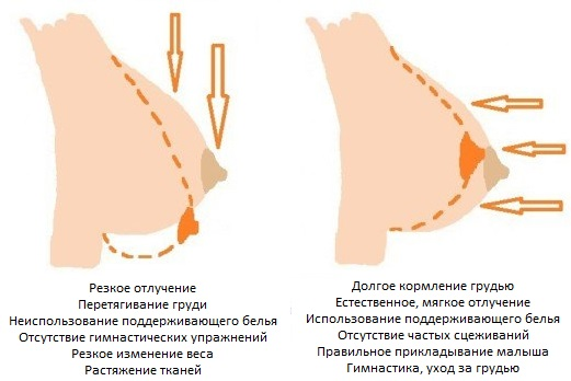 Когда при беременности увеличивается грудь