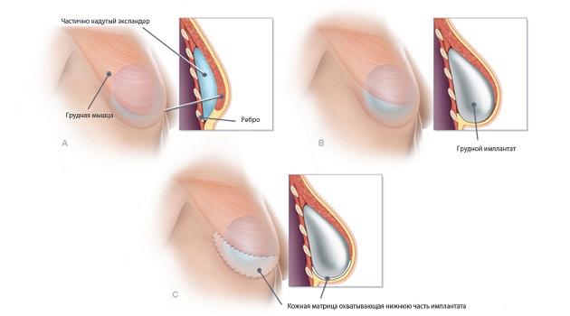 Установка эндопротеза