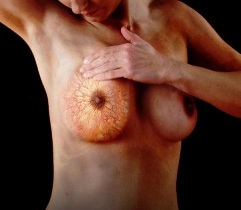 Как выявить кисту в молочной железе