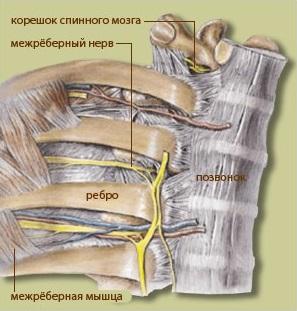 При межреберной невралгии могут появиться боли слева
