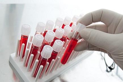 Общие анализы крови