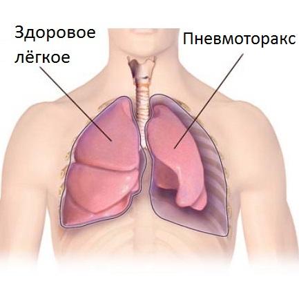 Боль слева может проявиться при пневомотораксе