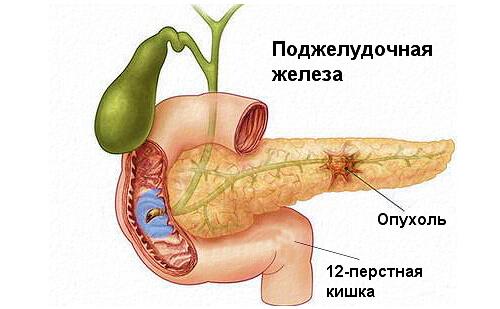 Рак поджелудочной железы - это самая опасная патология
