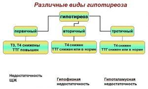 Выделяют несколько разновидностей гипотиреоза