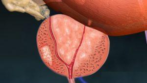 Рак предстательной железы чаще всего диагностируется у мужчин старше 60 лет