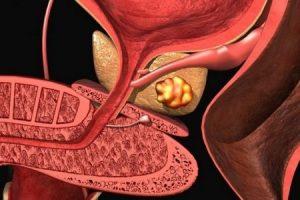 Аденокарциномой называют злокачественную опухоль в предстательной железе