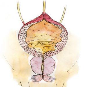 Аденома простаты имеет схожие симптомы с раком