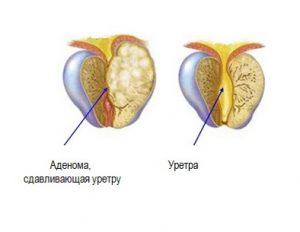 Аденома простаты чаще встречается у мужчина после 50 лет