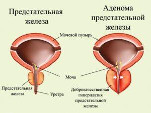 Аденома простаты развивается у мужчин старше 50 лет