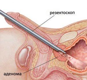 Лечение аденомы простаты проводится методом хирургического вмешательства