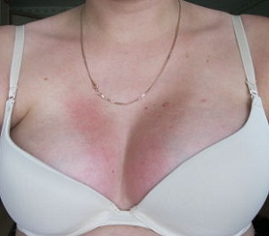 Зуд из-за аллергии