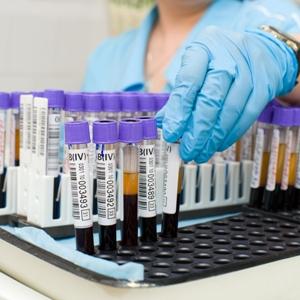 Анализ на антитела к пероксидазе назначается при нарушениях в иммунной системе