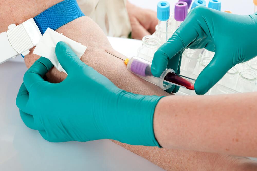 Для диагностики проводят анализ крови на онкомаркеры