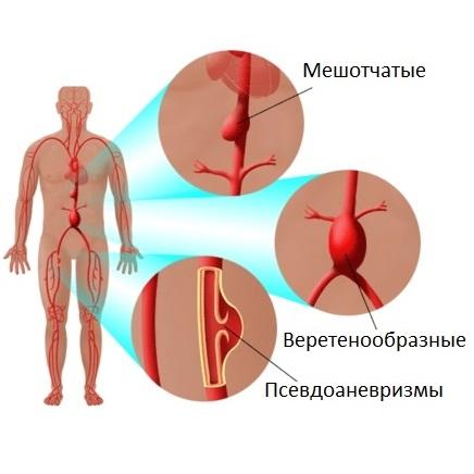 какие заболевания вызывают паразиты у человека