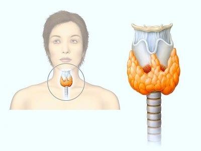 Появление аутоиммунного гипотиреоза связано со сбоем в иммунной системе