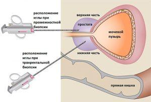 В диагностических целях может быть назначена биопсия предстательной железы