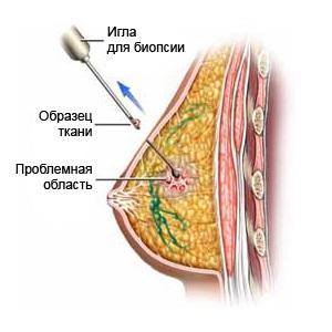Для начала лечения абсцесса необходимо провести биопсию