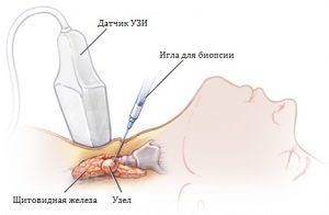 Биопсия узлов щитовидной железы