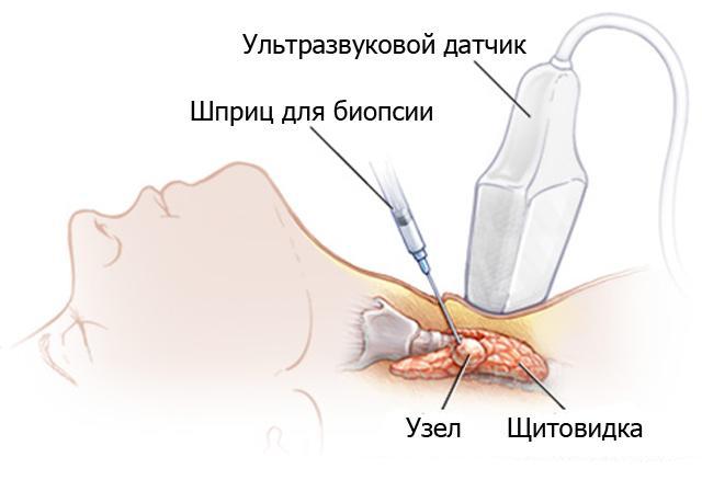 Для диагностирования заболевания пациенту может быть назначена биопсия