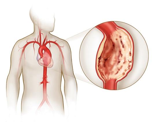 Аневризма аорты может стать причиной болей
