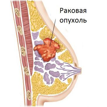 Боли в левой груди, как следствие развития рака