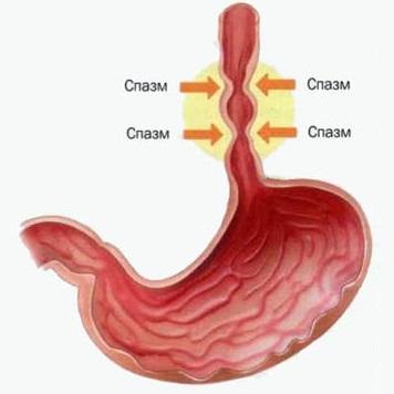 Спазмы пищевода могут стать причиной боли в груди при глотании