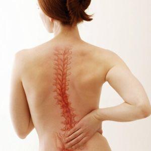 Боль в позвоночнике является косвенным признаком рака