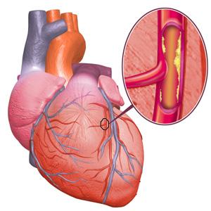 При заболеваниях сердца женщина ощущает покалывания слева