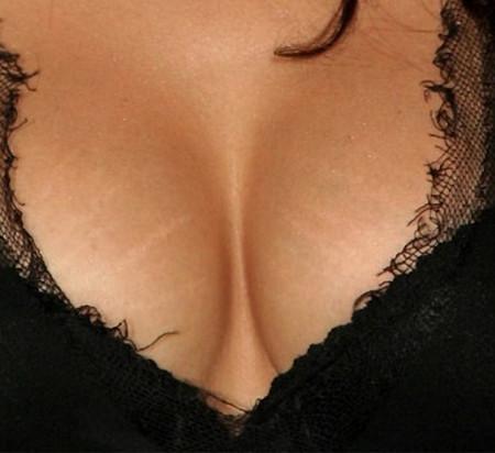 При большом объеме груди риск появления растяжек гораздо выше
