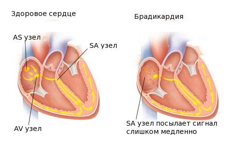 На фоне коллоидного зоба может возникнуть брадикардия