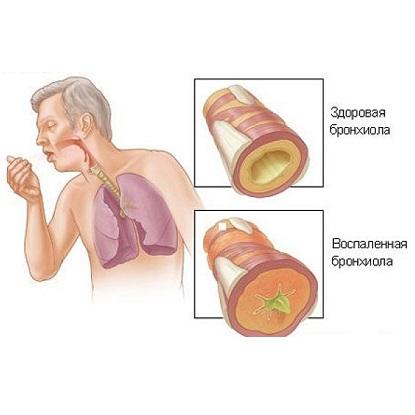 При бронхите появляются боли в груди