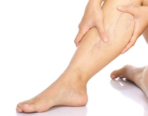 Цикорий рекомендован при варикозе и сосудистых заболеваниях