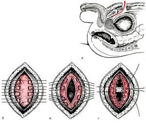Лечение фиброза простаты проводится хирургическим путем