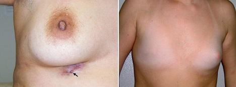 Аномалии груди