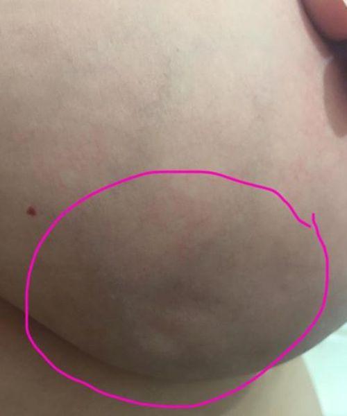 Самый явный признак рака - деформация груди