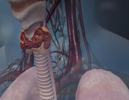 На второй стадии заболевания щитовидка деформируется, но метастазы еще не появляются