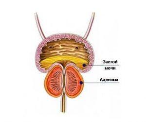 При доброкачественной гиперплазии предстательной железы орган увеличивается в размерах