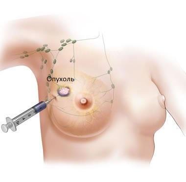 Для диагностики может потребоваться биопсия