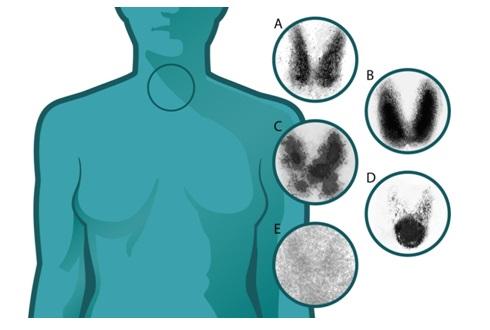 Заболевание диагностируется методом сцинтиграфии