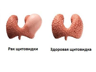 Рак щитовидки - опасное заболевание, которое быстро разрастается в размерах