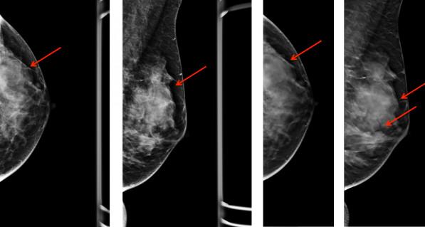 Диффузная мастопатия характеризуется как сбой соединительных и эпителиальных клеток тканей