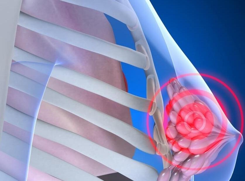 Диффузная мастопатия сопровождается сильной болью, которая отдает на другие участки тела