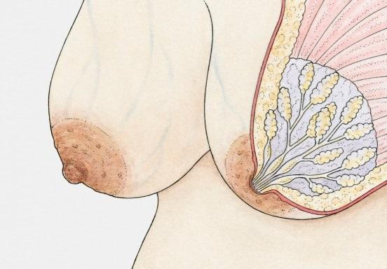 Диффузная фиброзная мастопатия не имеет четких очертаний